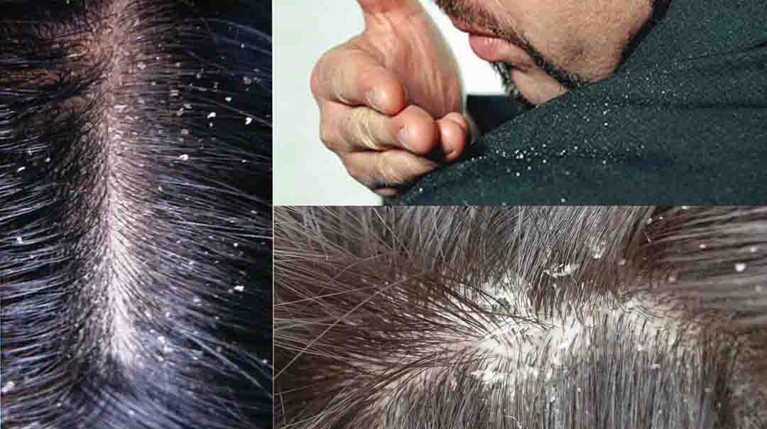 You Have Problems With Dandruff In Your Hair? Here Are Some Recipes How To Remove