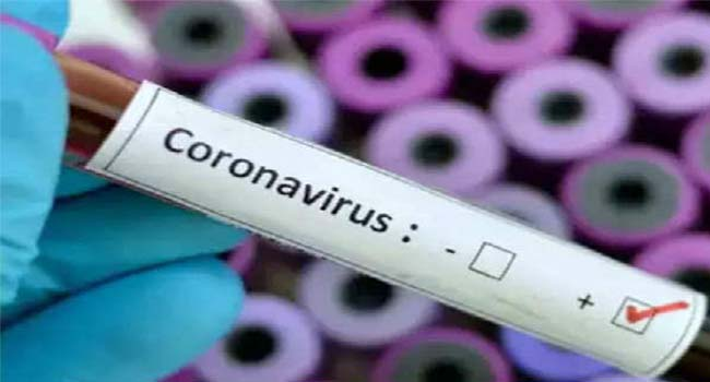 Pakistan: Chief Minister of Balochistan Province infected with corona virus